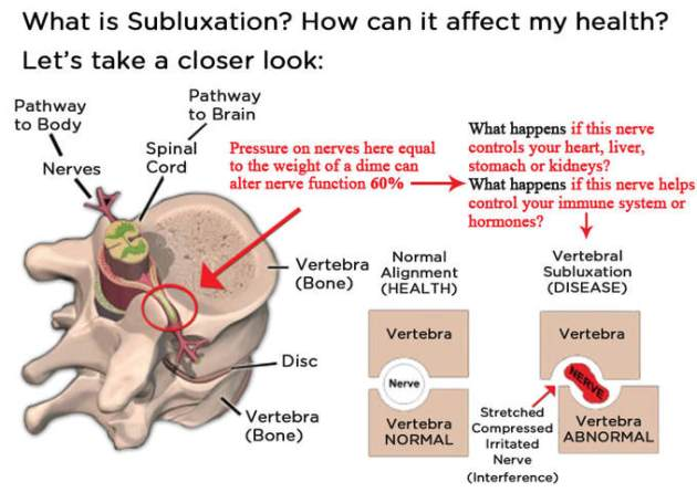 what-is-subluxation1